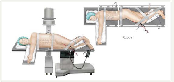 C-Arm Free Oblique Lumbar Interbody Fusion (OLIF) and Lateral ...